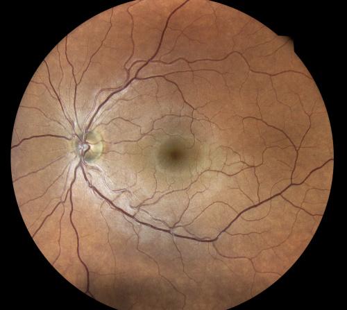 normaler Augenhintergrund